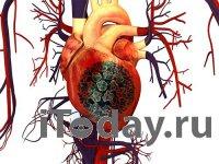 Инфицирование опасными типами ВПЧ может говорить о высоком риске болезней сердца