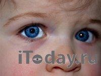 Пассивное курение может приводить к поражениям глаз у детей