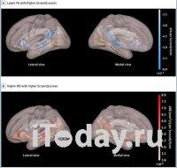 Длительное нахождение возле экрана связано с замедлением развития мозга дошкольников