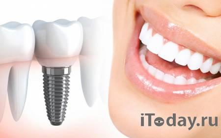 4 преимущества имплантации зубов от Polimagia.by